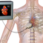 electrocardiogram vs echocardiogram and difference between ekg and echo