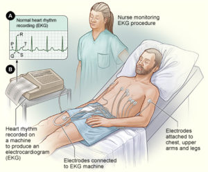 electrocardiogram vs echocardiogram difference between ekg and echo