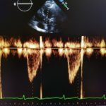 stroke volume formula echocardiography